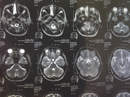 otak.jpg